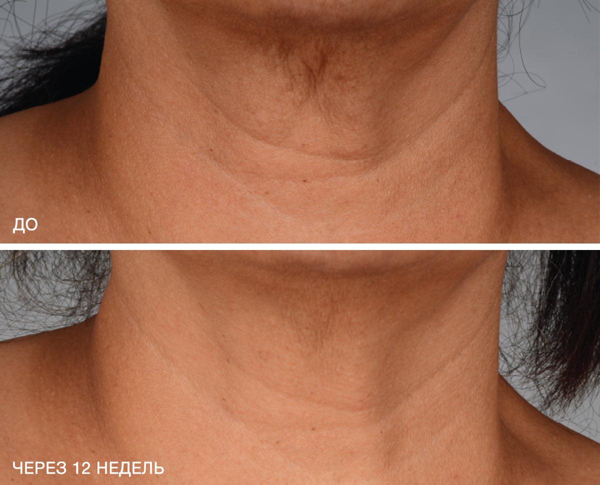 neck_b_a_1