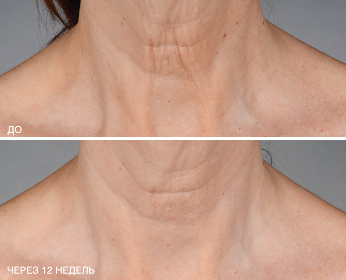 neck_b_a_2