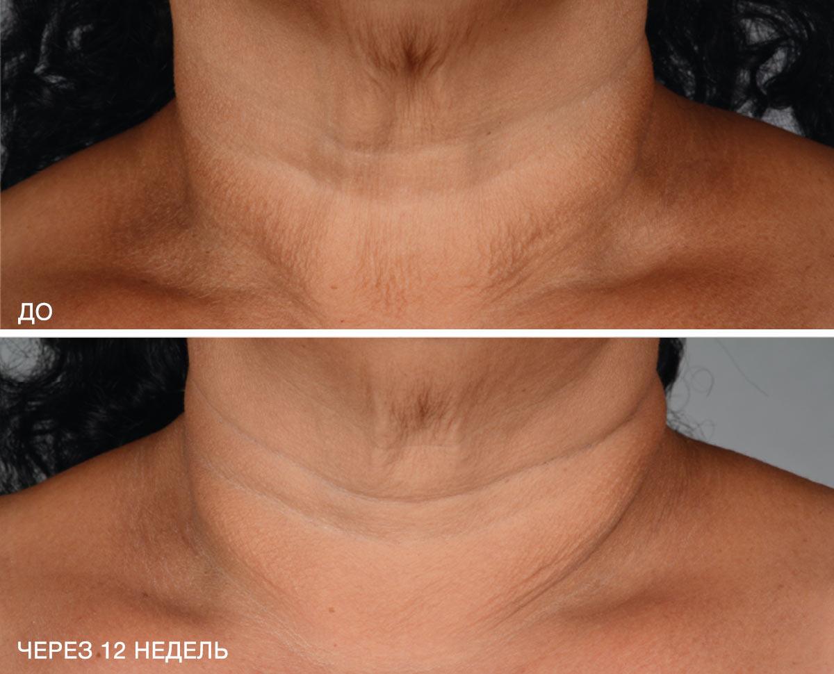 neck_b_a_3