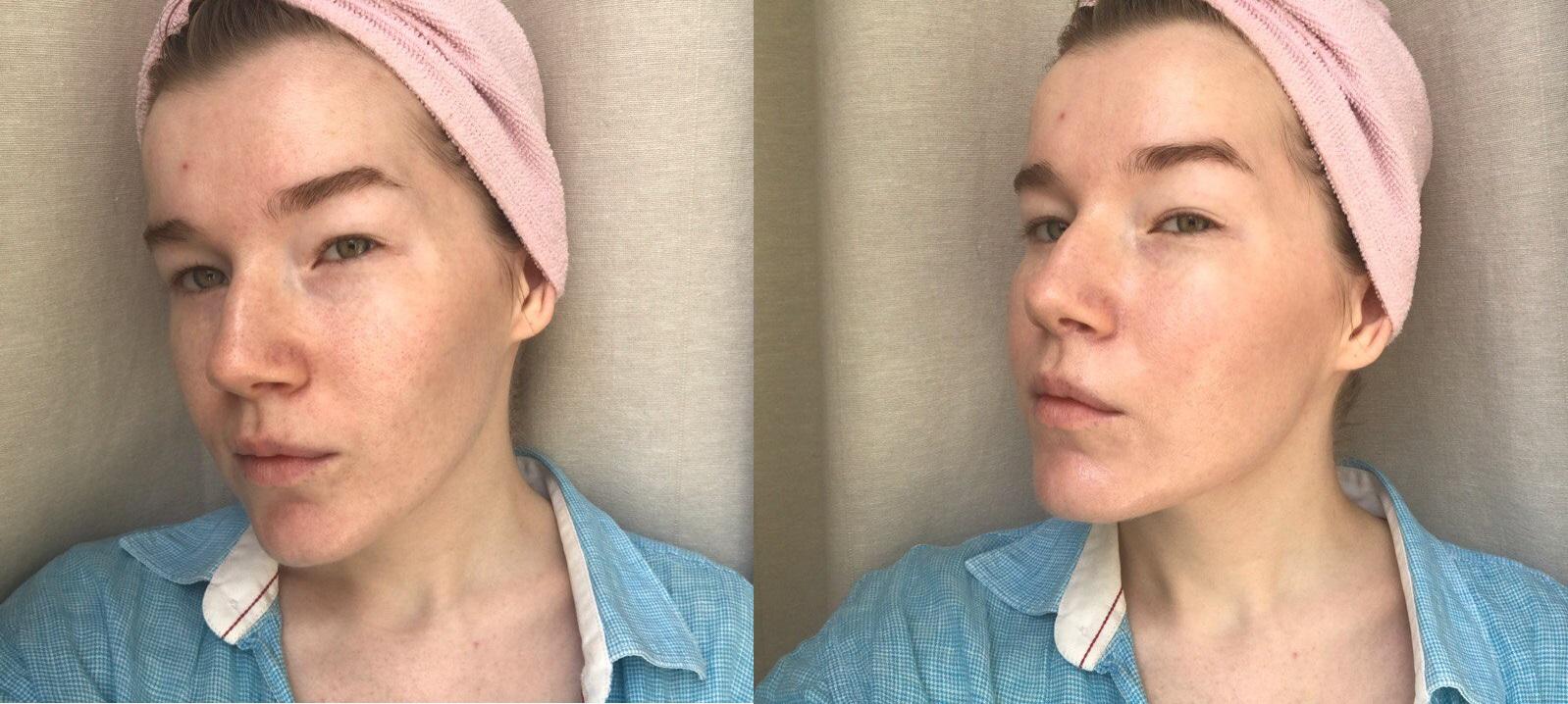 Слева - чистая кожа, справа - через пару минут после нанесения